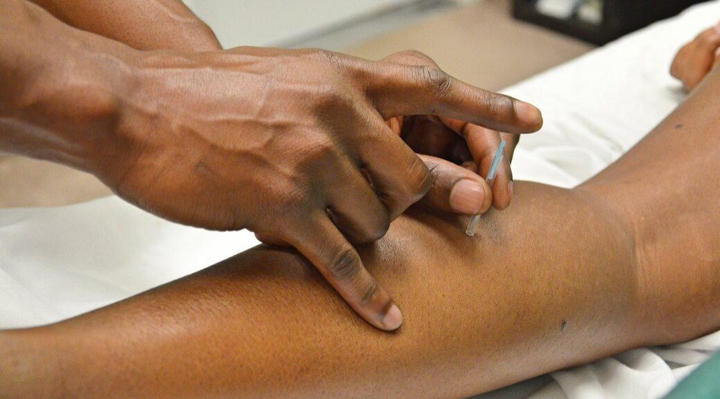 akupunktura białystok